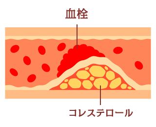 動脈硬化の図